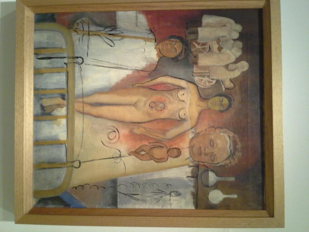 Frida and the Caesarean